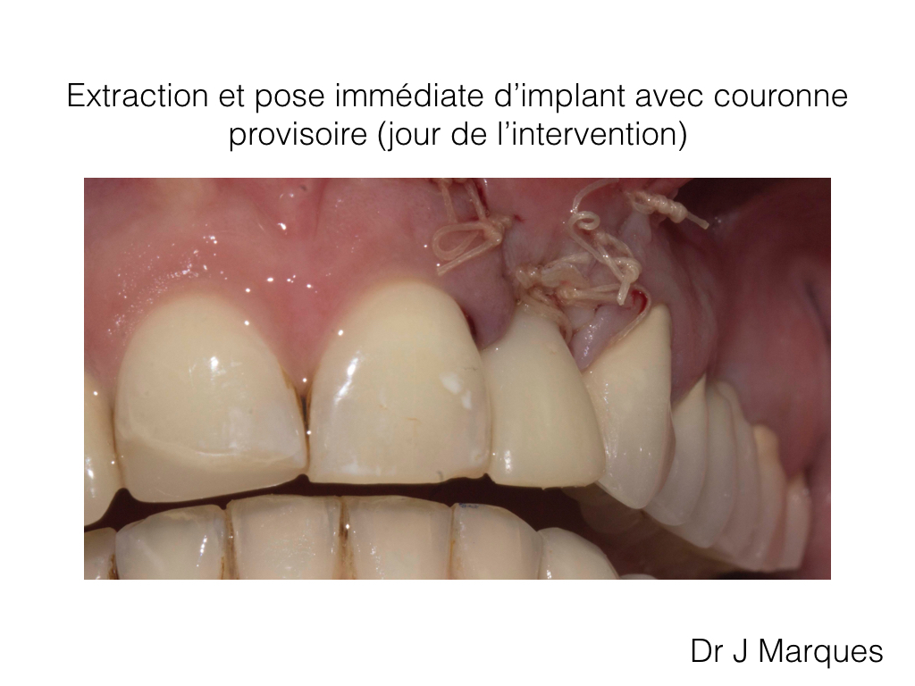 pose d implant periode cicatrisation